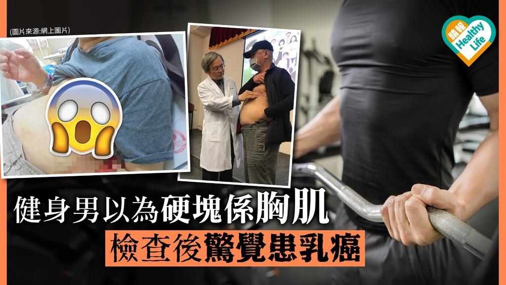 健身男以為硬塊係胸肌 檢查後發現患乳癌