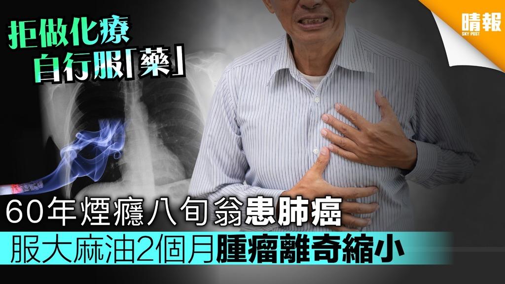 60年煙癮八旬翁患肺癌 服大麻油2個月腫瘤離奇縮小