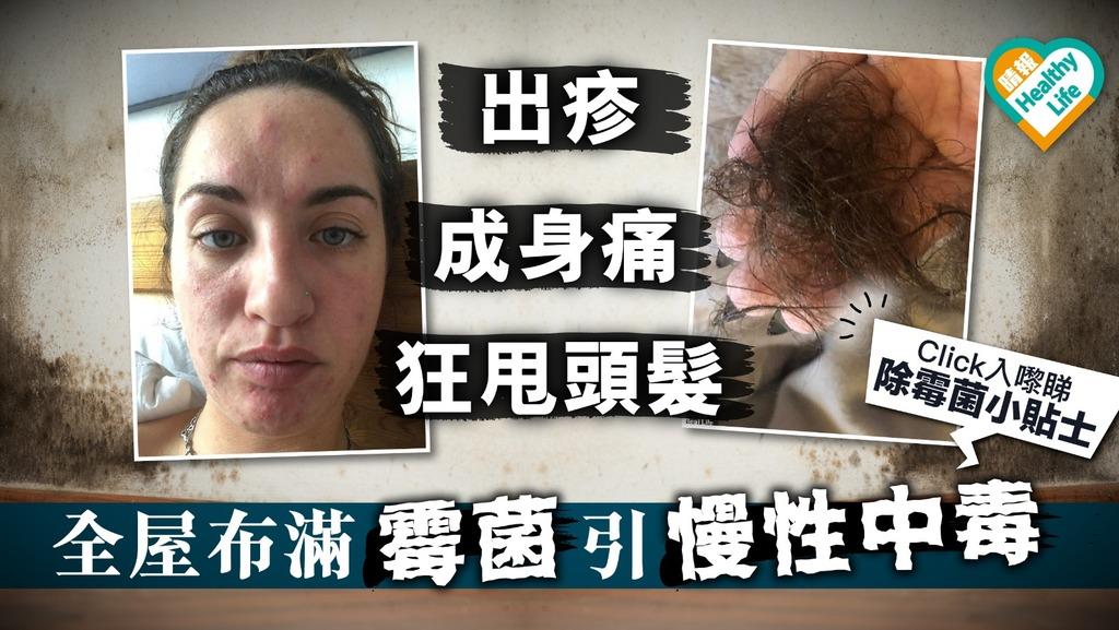 29歲女「慢性中毒」出疹加狂甩頭髮 皆因全屋布滿霉菌