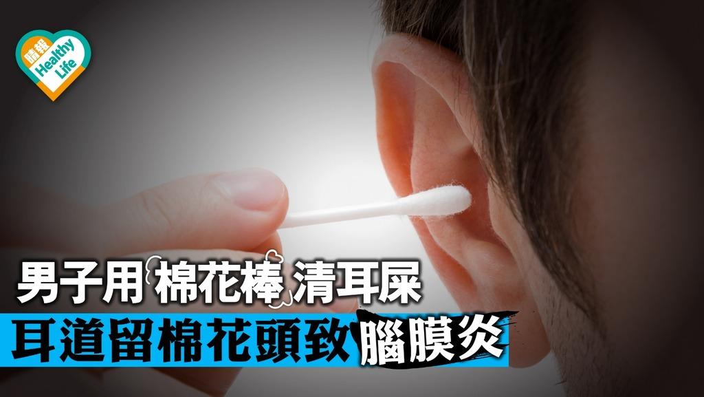 男子耳道留棉花棒頭 細菌感染致癲癇腦膜炎