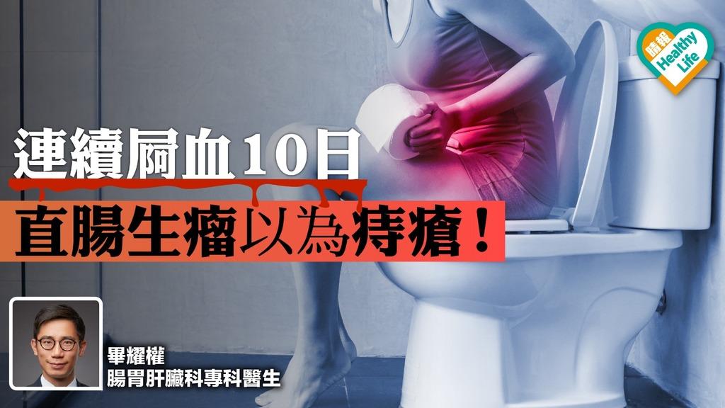 連續屙血10日 直腸生瘤誤以為痔瘡!
