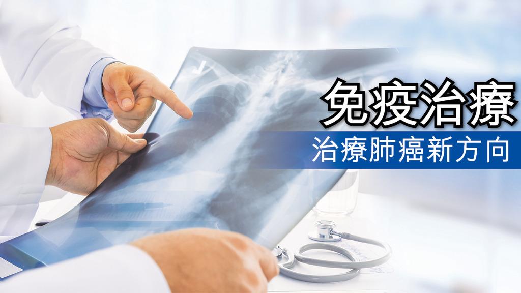 免疫治療治療肺癌新方向