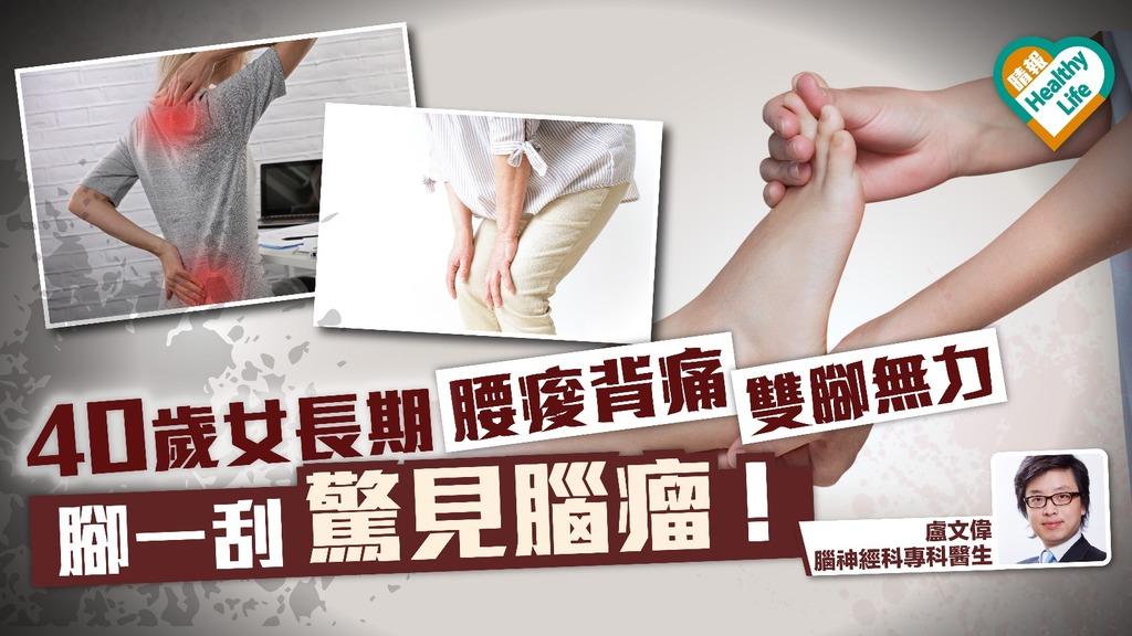 40歲女長期腰痠背痛雙腳無力 檢查後發現腦生瘤!