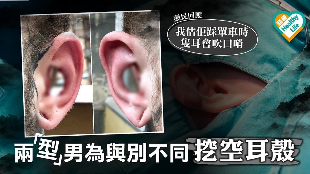 兩「型」男挖空耳殼為與別不同 指聽力沒有影響