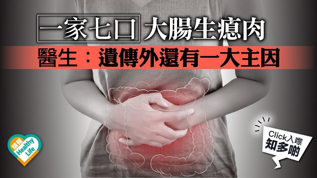 一家七口人人有份 生瘜肉響起大腸癌警號