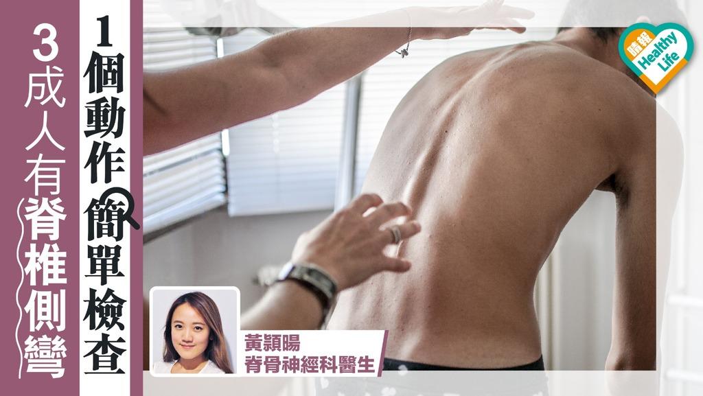 30%人有脊椎側彎 一個動作簡單檢查