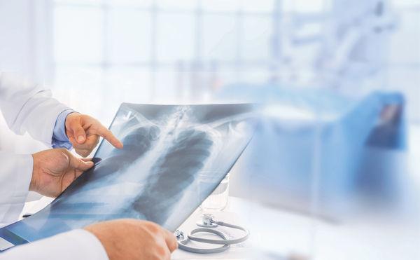 「免疫治療 治療肺癌新方向」