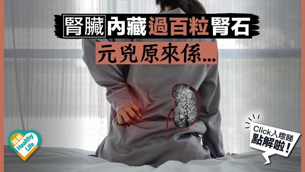 恐怖!剖開腎臟內藏過百粒腎石 3大高危人士要小心
