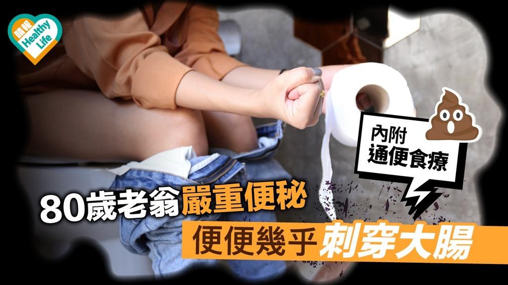 80歲老翁嚴重便秘 便便塞滿大腸惹腹膜炎敗血症
