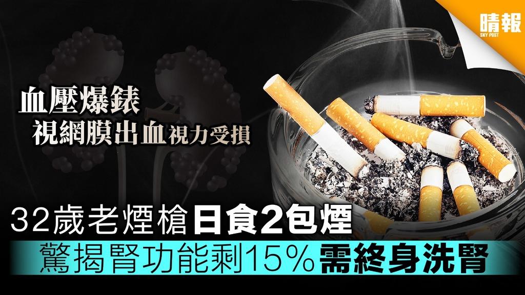 台32歲老煙槍血壓高視力降 驚揭腎功能剩15%需終身洗腎