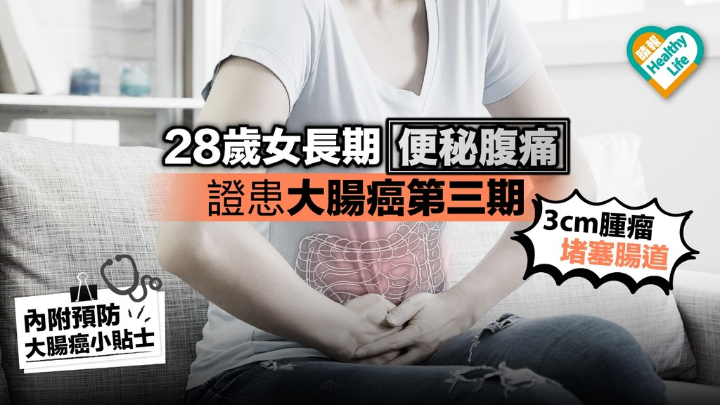 28歲女長期便秘腹痛 證患大腸癌第三期