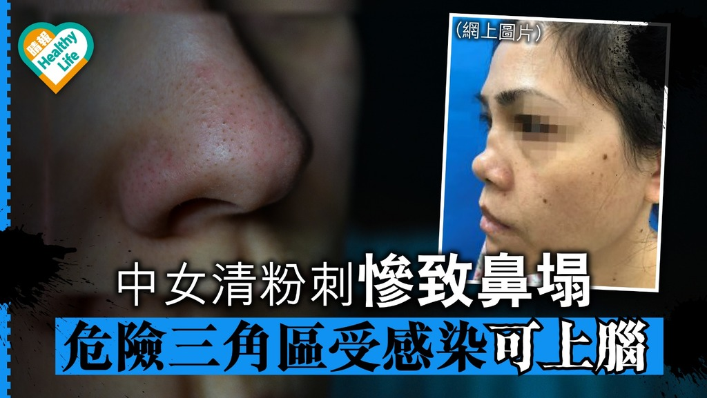 中女清粉刺慘致鼻塌 危險三角區受細菌感染可上腦