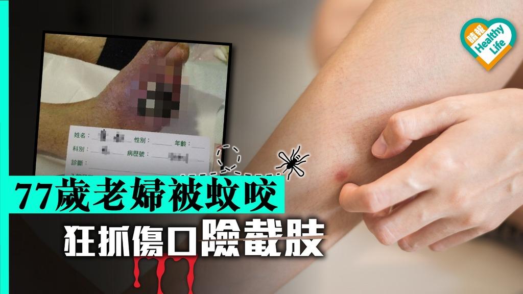 77歲老婦被蚊咬 狂抓傷口致食肉菌感染險截肢