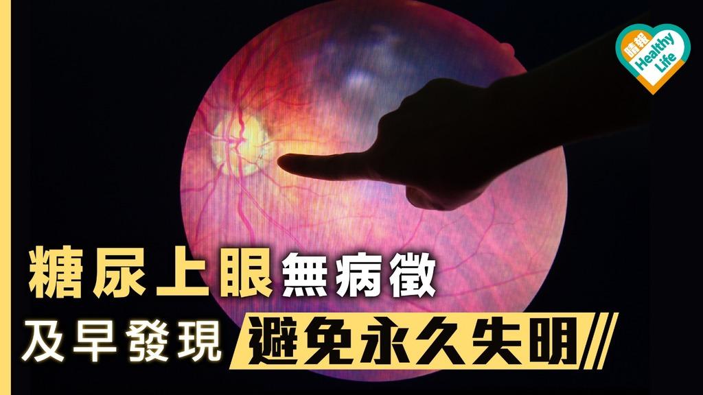 糖尿眼無病徵 及早發現避免永久失明