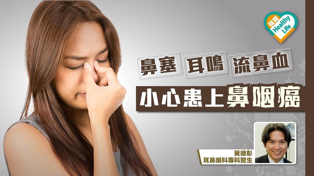 以為感冒鼻敏感?長期鼻塞耳鳴 小心患上鼻咽癌