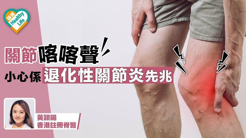 關節喀喀聲 小心係退化性關節炎先兆