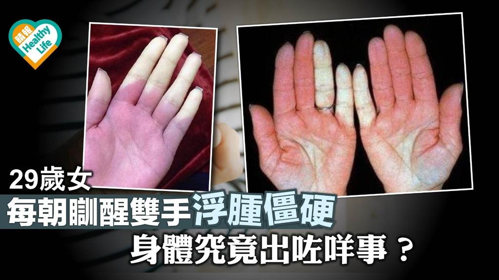 29歲女每朝瞓醒雙手僵硬 原來得咗一種病!