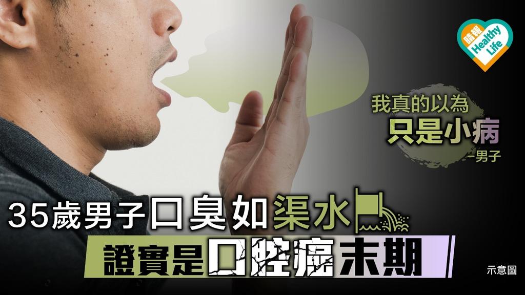 35歲男子口臭如渠水 證實口腔癌末期