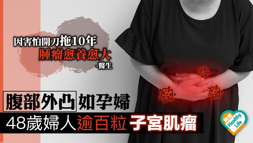 中年婦女子宮長逾百粒肌瘤 經血過多腹部外凸