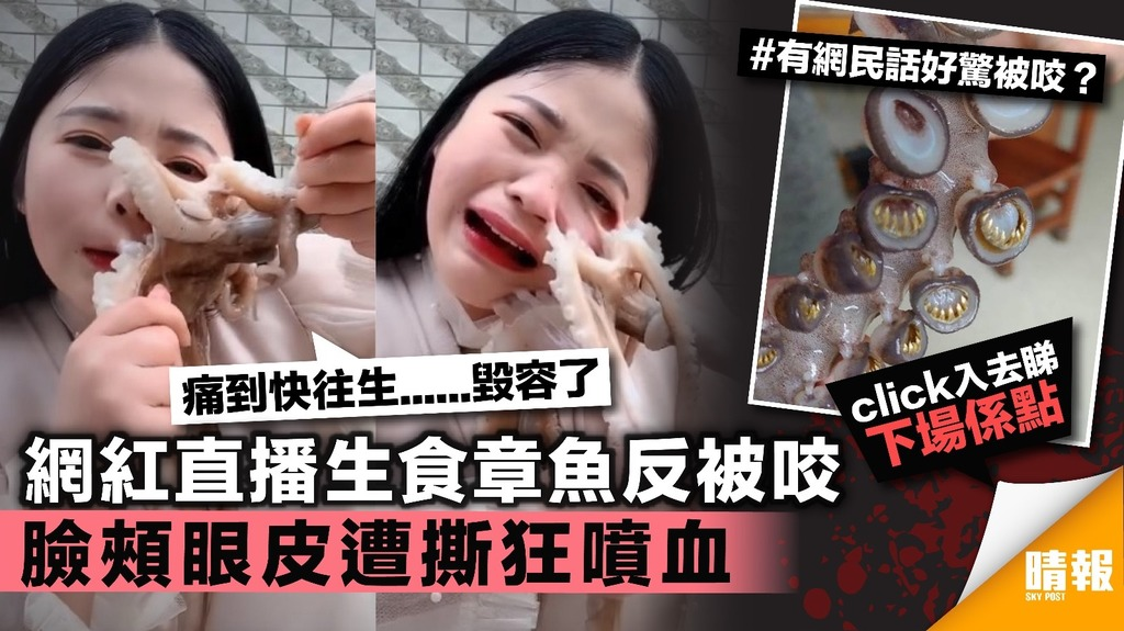【有片】網紅直播生食章魚反被咬 臉頰眼皮遭撕扯噴血