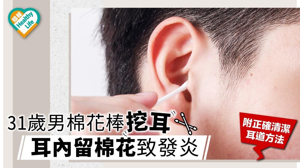 棉花棒挖耳 耳內留棉花致發炎 31歲男腦內現腫塊 【附正確清潔耳道方法】