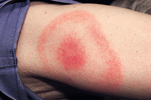氣候暖化致蜱蟲入侵 萊姆病蔓延加拿大