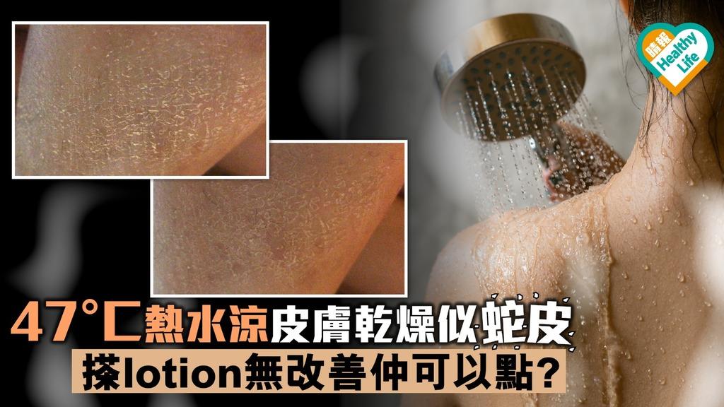 魚鱗病皮膚乾燥現六角形鱗屑 醫生:尿素軟膏A酸可改善
