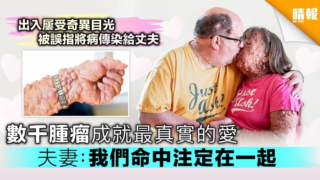 數千腫瘤成就最真實的愛 夫妻:我們命中注定在一起