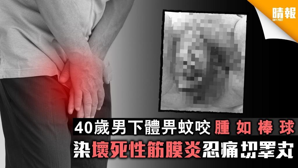 40歲男下體畀蚊咬腫如棒球 染壞死性筋膜炎忍痛切睪丸