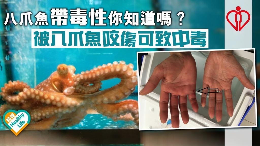 八爪魚帶毒性你知道嗎? 被八爪魚咬傷可致中毒
