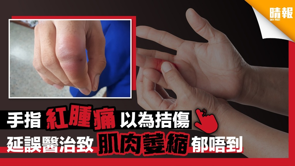 手指紅腫痛以為拮傷 延誤醫治致肌肉萎縮唔郁得