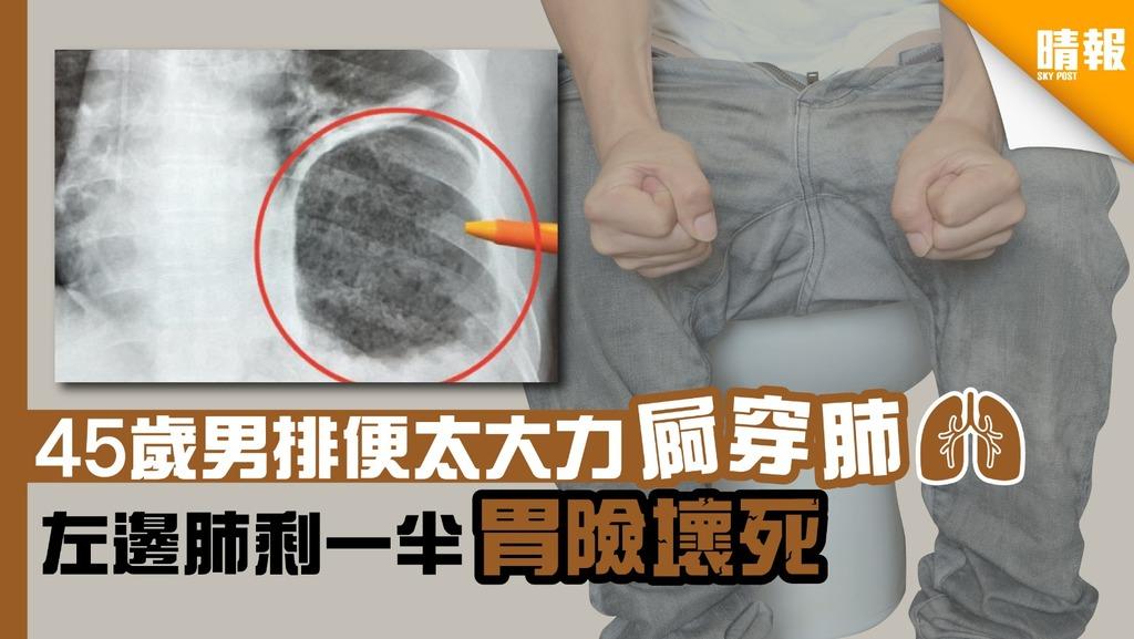 45歲男排便太大力屙穿肺 左邊肺剩一半胃險壞死