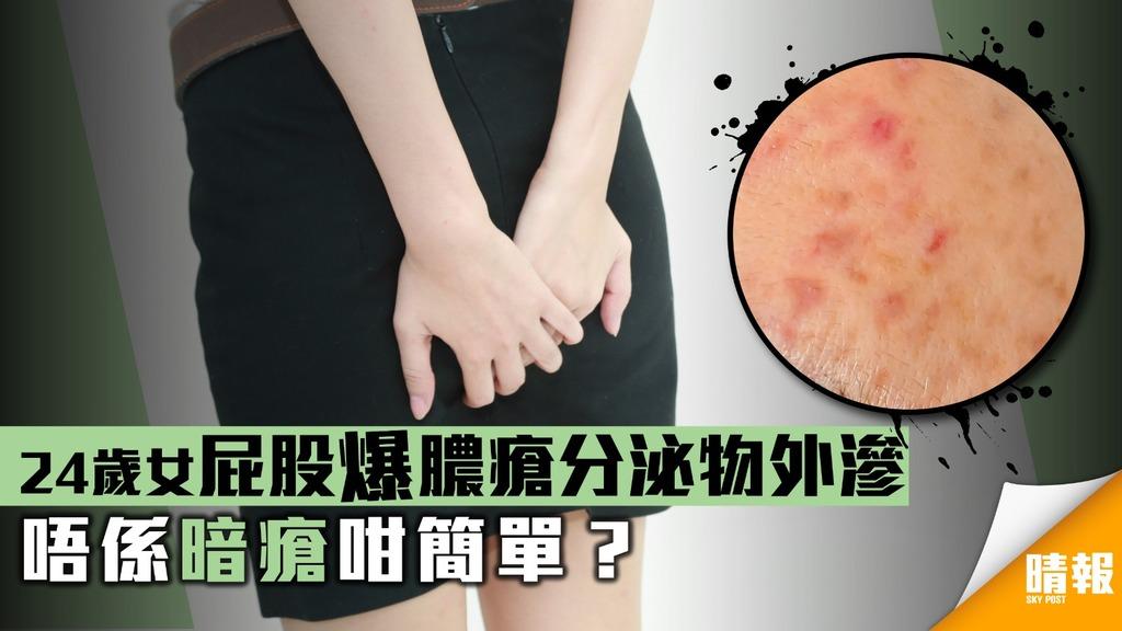 24歲女屁股爆膿瘡分泌物外滲 唔係暗瘡咁簡單?