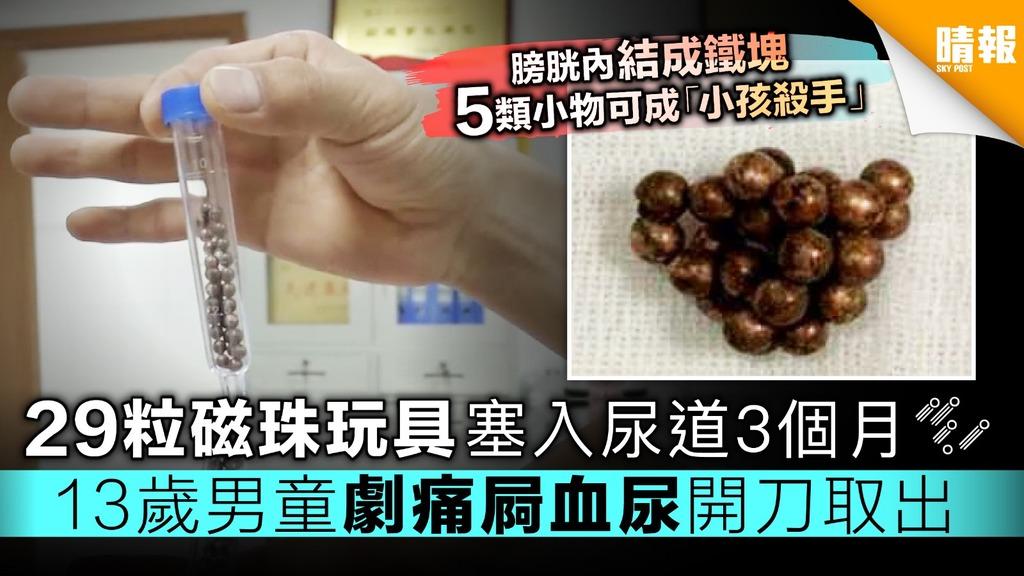 【5類高危小物】29粒磁珠玩具塞入尿道3個月 13歲男童劇痛屙血尿開刀取出