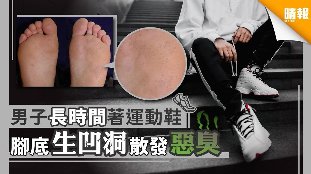 男子長時間著運動鞋 腳底生凹洞散發惡臭