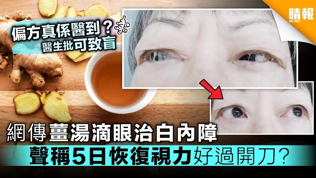 網傳溫薑湯滴眼治白內障 稱用後視力改善 醫生批「可致盲」