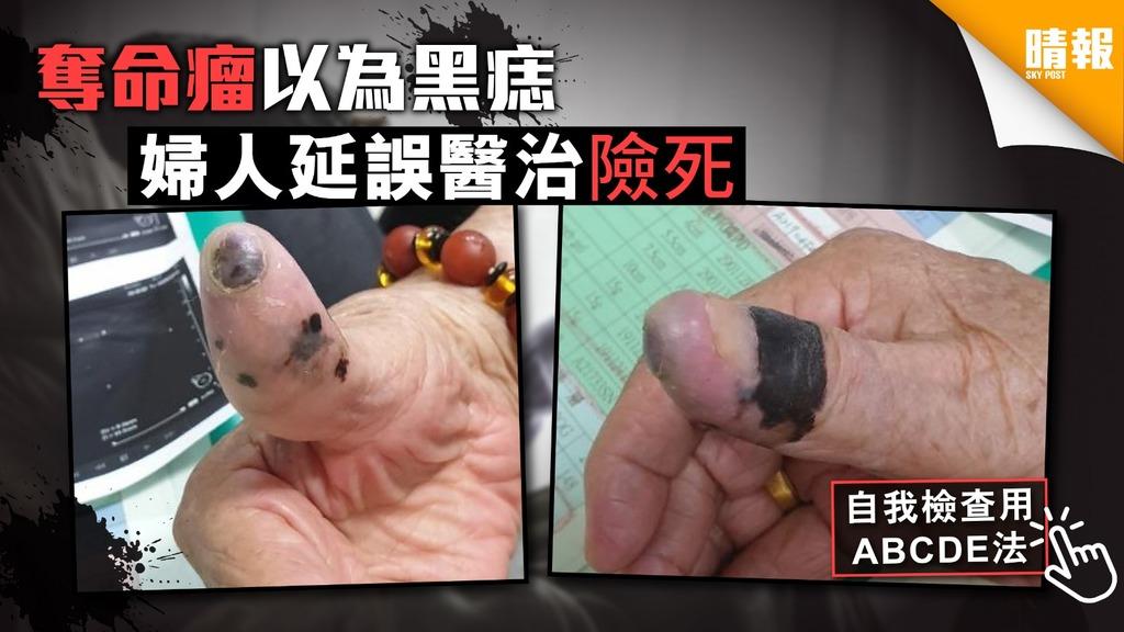 奪命瘤以為黑痣 婦人延誤醫治險死