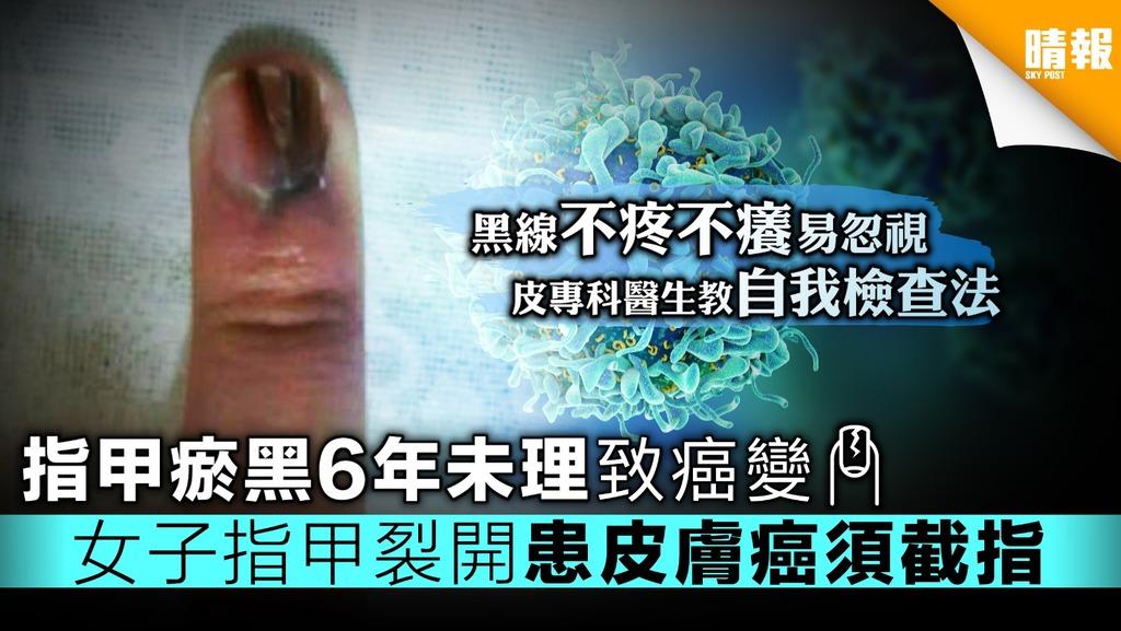 【附簡單自我檢查法】指甲瘀黑6年未理致癌變 女子指甲裂開患皮膚癌須截指