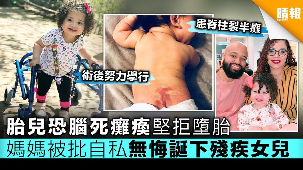 胎兒恐腦死癱瘓堅拒墮胎 媽媽被批自私 無悔誕下殘疾女兒