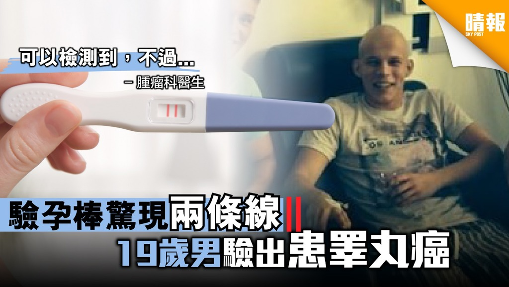 19歲男用驗孕棒驚現兩條線 檢查後原來係睪丸癌