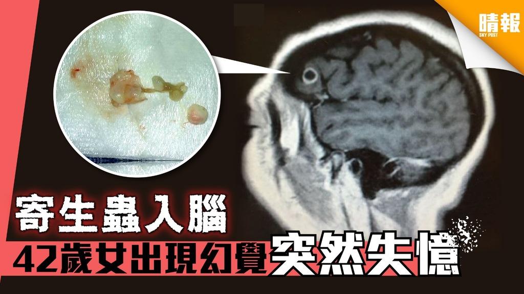 寄生蟲入腦 42歲女出現幻覺突然失憶