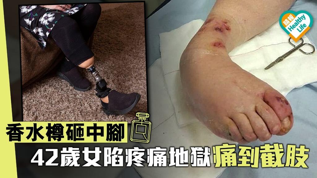 香水樽砸中腳 42歲女陷疼痛地獄痛到截肢