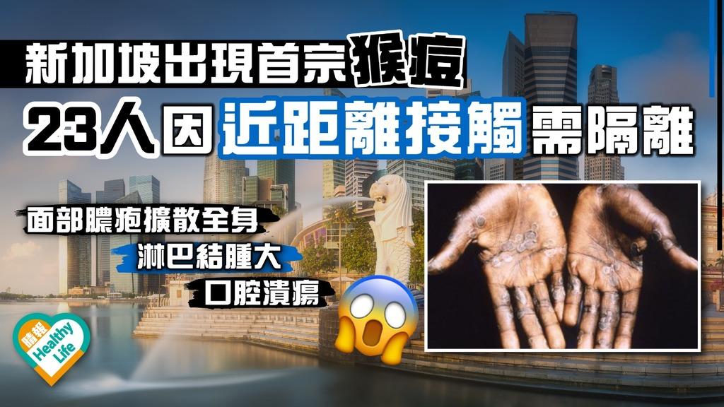 新加坡出現首宗猴痘 23人因近距離接觸需隔離
