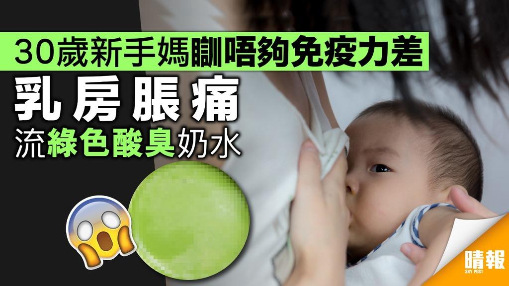 30歲新手媽免疫力差瞓唔夠 乳房脹痛流綠色酸臭奶水