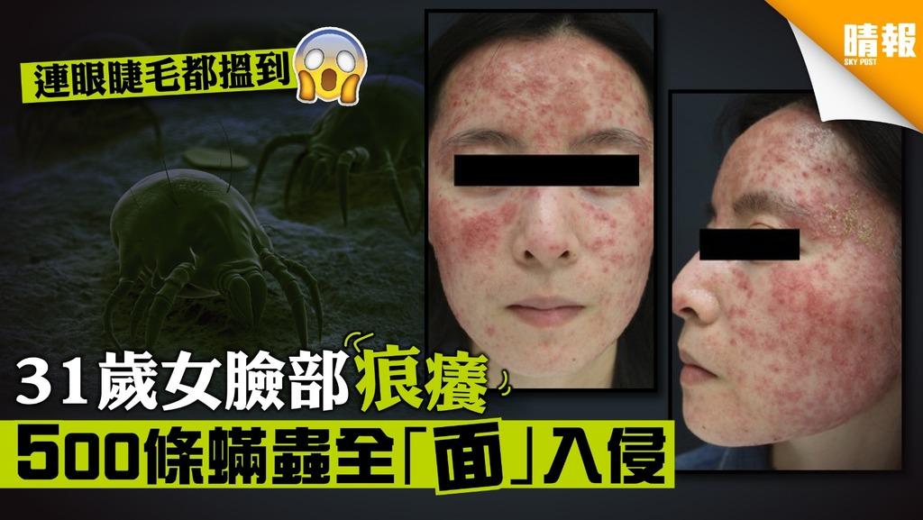 31歲女臉部發癢 醫生發現500條蟎蟲全「面」入侵