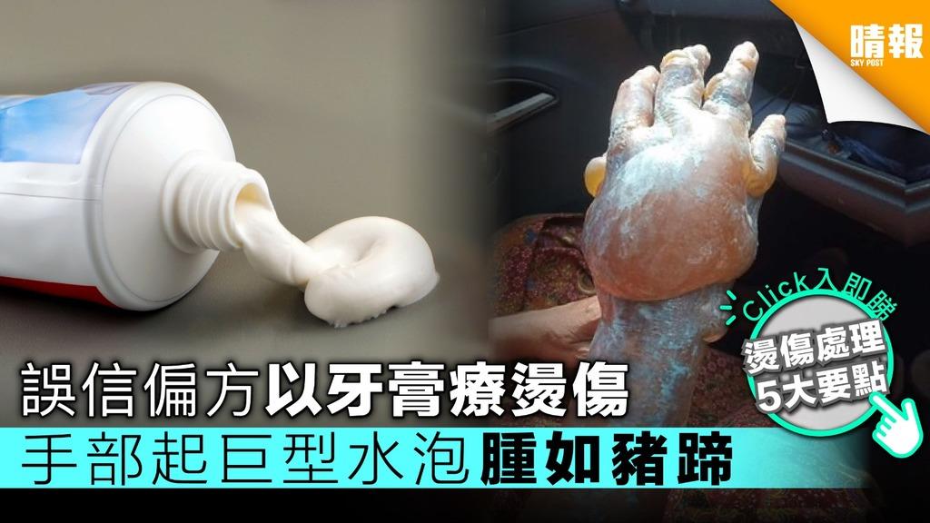 誤信偏方以牙膏療燙傷 患者手部起巨型水泡腫如豬蹄【附燙傷處理5大要點】