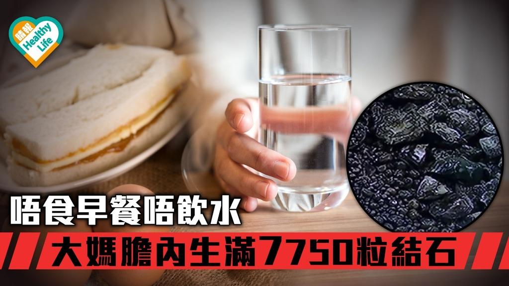 【塞爆膽囊】大媽唔飲水唔食早餐 膽內生滿7750粒結石