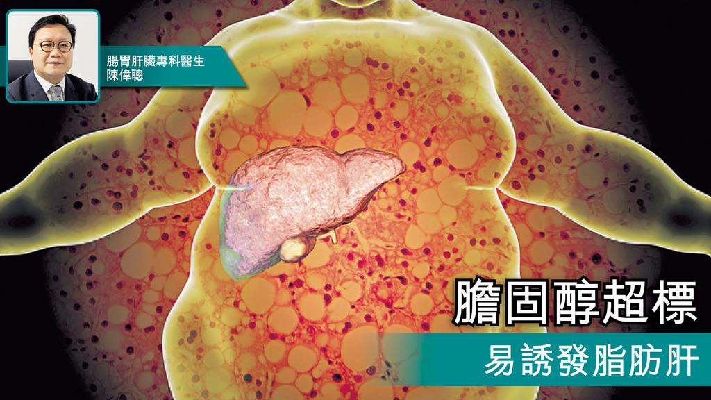 「膽固醇超標 易誘發脂肪肝」