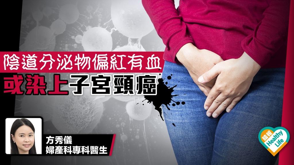 白帶偏紅有血 或染上子宮頸癌