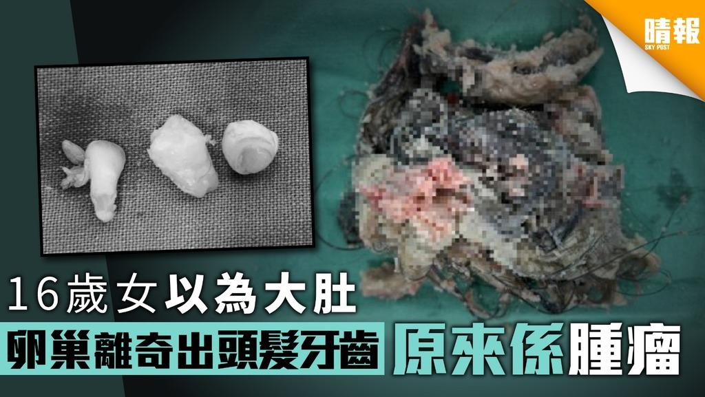 16歲女以為大肚 卵巢離奇出頭髮牙齒原來係腫瘤